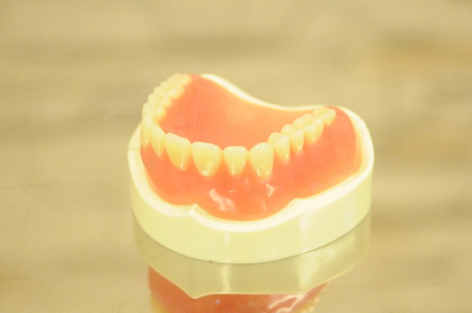 審美歯科画像