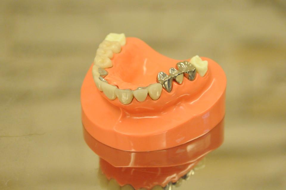 歯のモデル